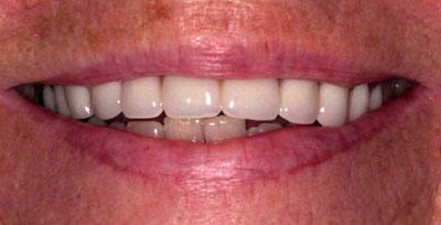 linda w before dentures