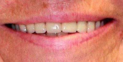 linda w 2 after dentures