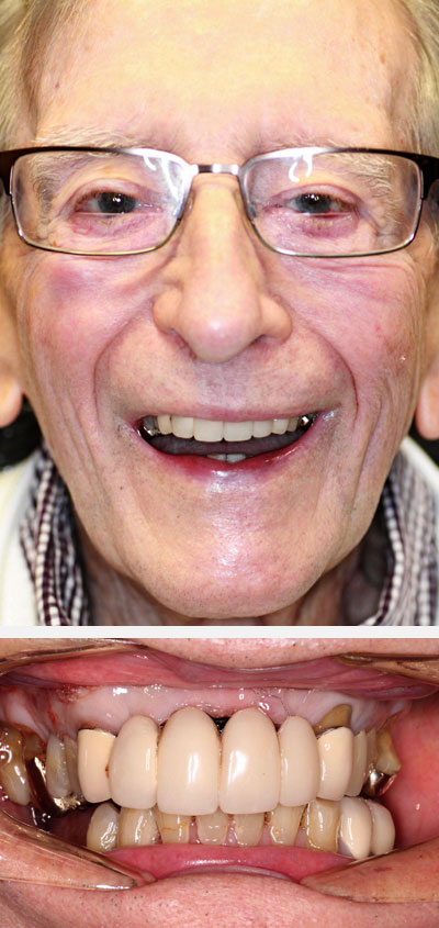 richard m before smile makeover