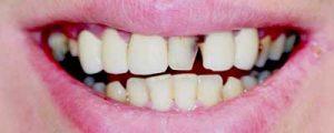 Moorestown Dentistry