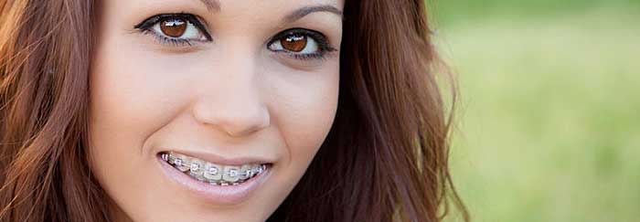 Dental Braces - Moorestown, NJ