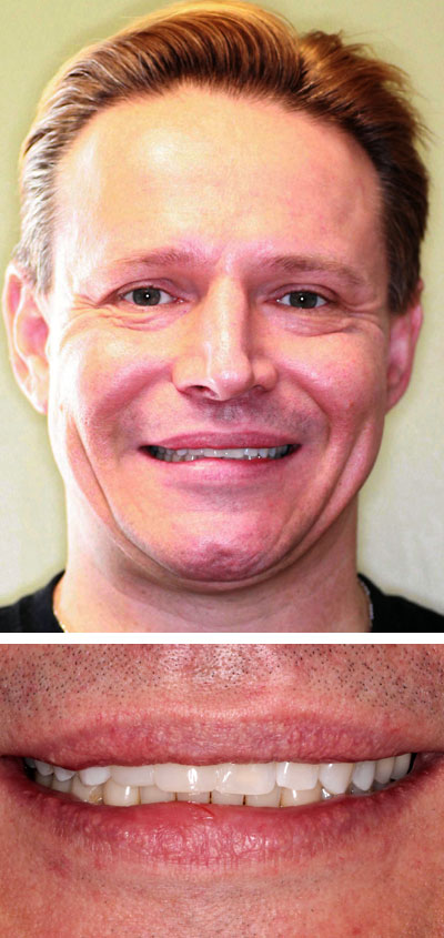 frank p after smile makeover