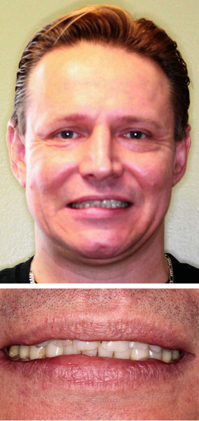frank p before smile makeover