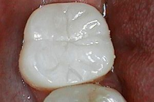 dental onlay after