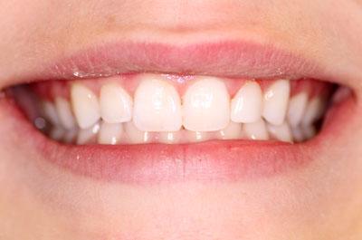 margaret p smile after
