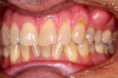Pinhole Gum Grafting is a miminally invasive way to correct