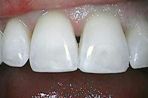 after dental bonding